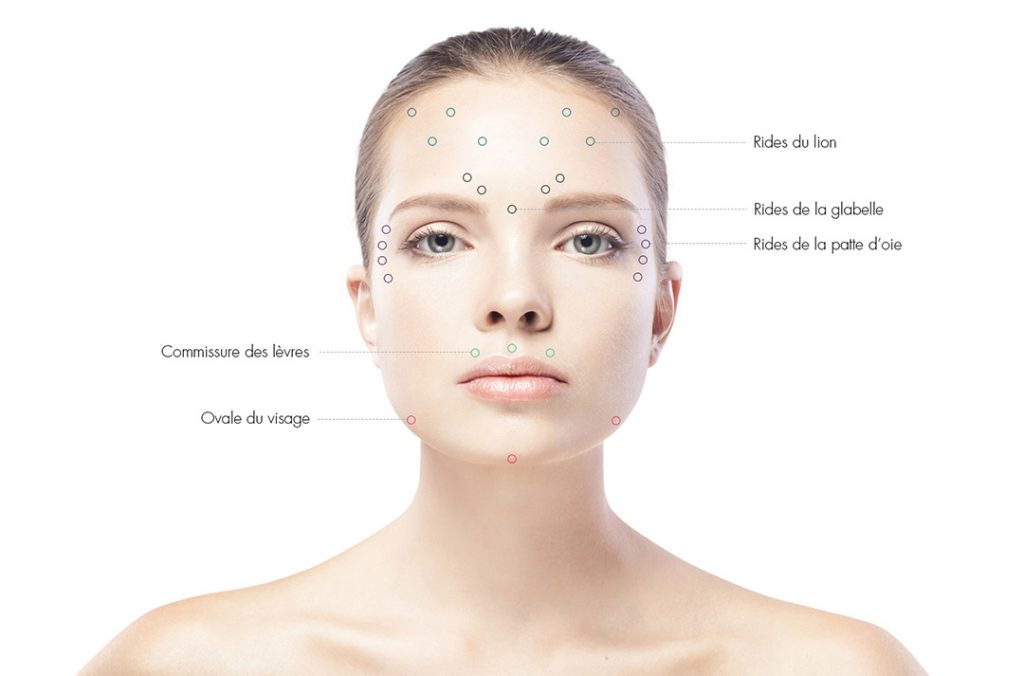 injection-botox-esthetique-modele-casting-atelier-medecine-esthetique-1